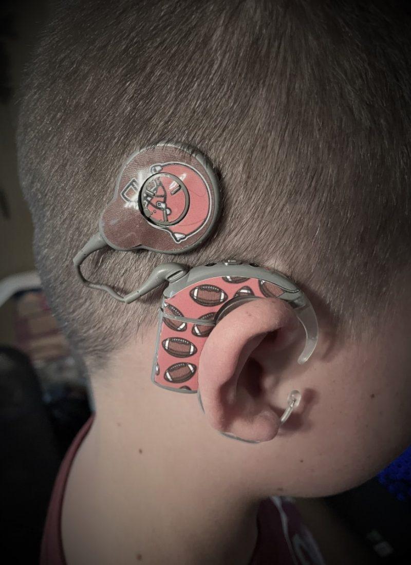 cochlear implants on boy